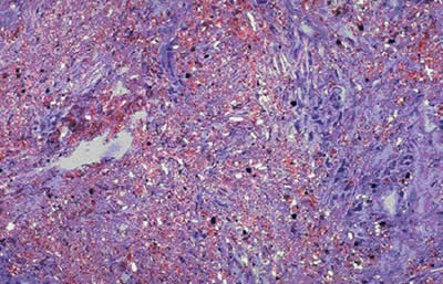 Lung Tissue with Crystalline SIlica Particles Embedded
